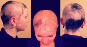 alopecia-alopesi